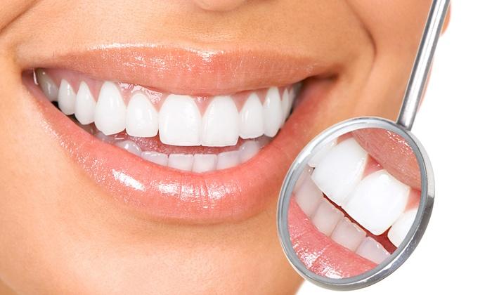 Hammastarkastus valinnaisella hammaskiven poistolla ja röntgen-kuvauksella alk. 19€