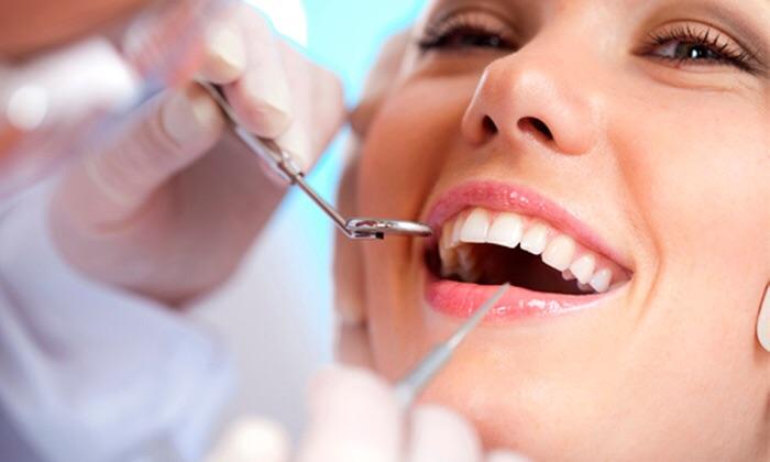 Hammastarkastus hammaskivenpoistolla ja puhdistuksella 45€ tai pelkkä tarkastus 15€