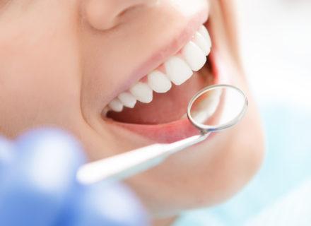 Purentakisko sis. hammastarkastuksen, sovituksen ja jälkitarkastukset 299€