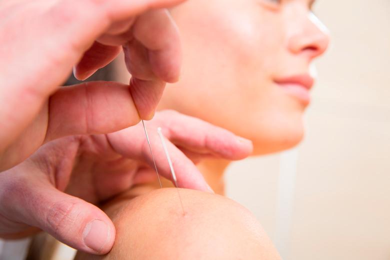 1h akupunktio vain 25€ (säästä 67%)